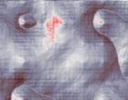 simplex virus